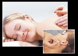 hj-side-akupunktur-2