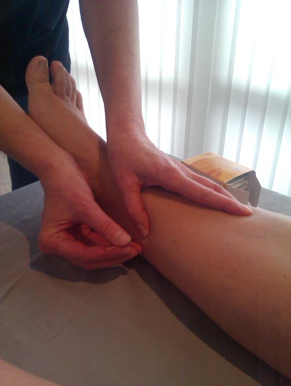 fødsel akupunktur